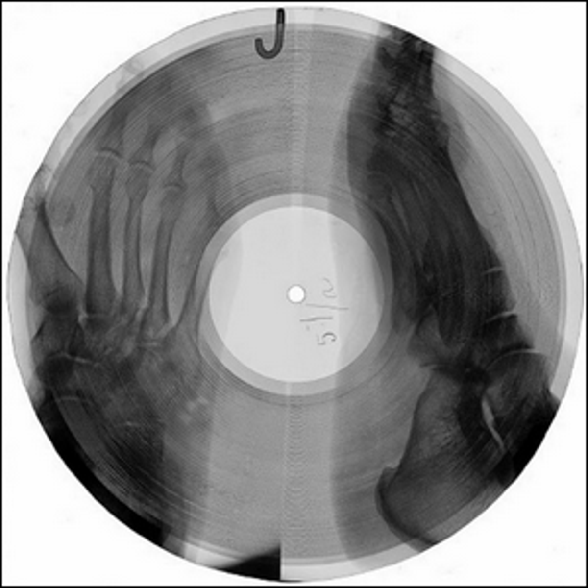 An example of a bone record, author unknown.