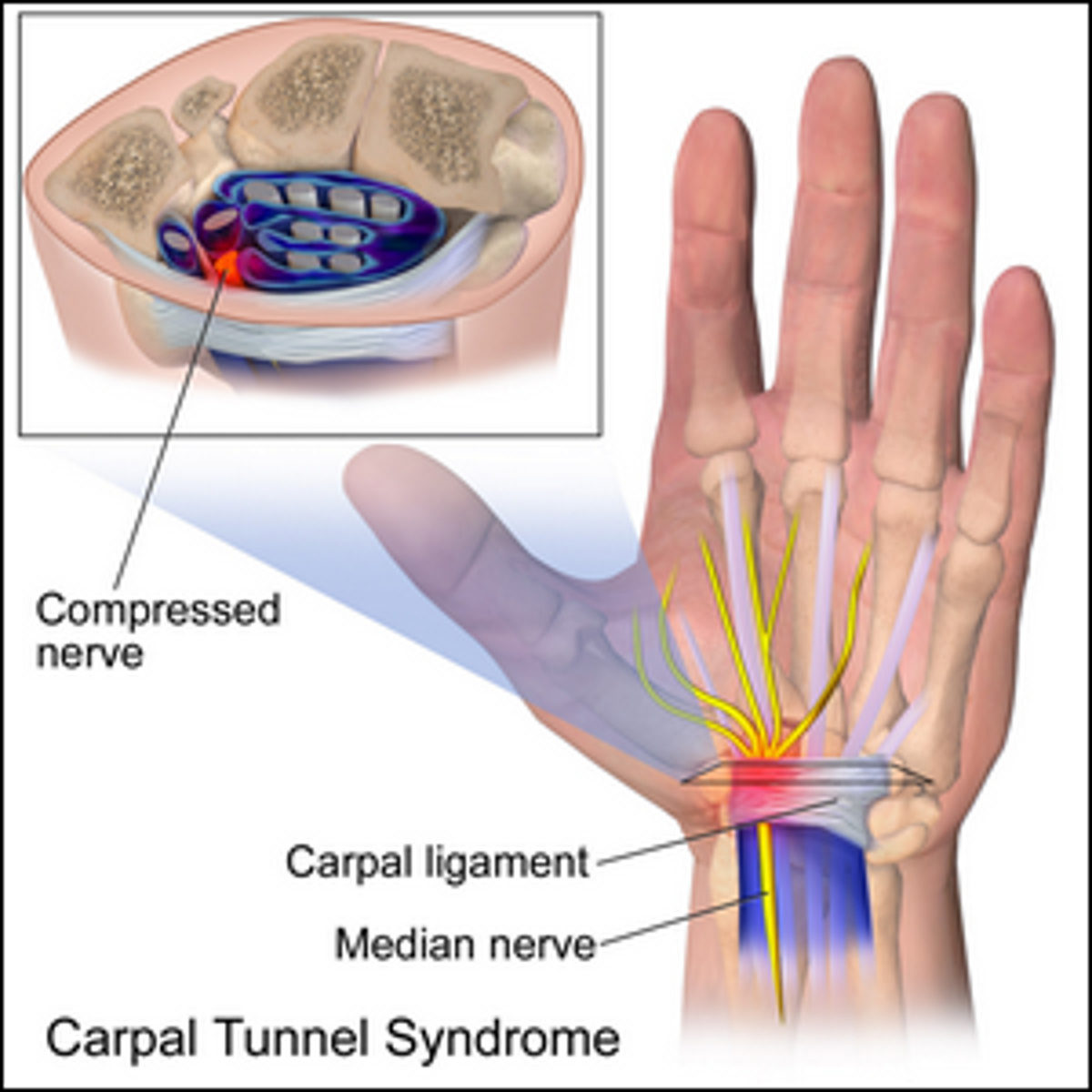 A medical illustration of Carpal Tunnel Syndrome.