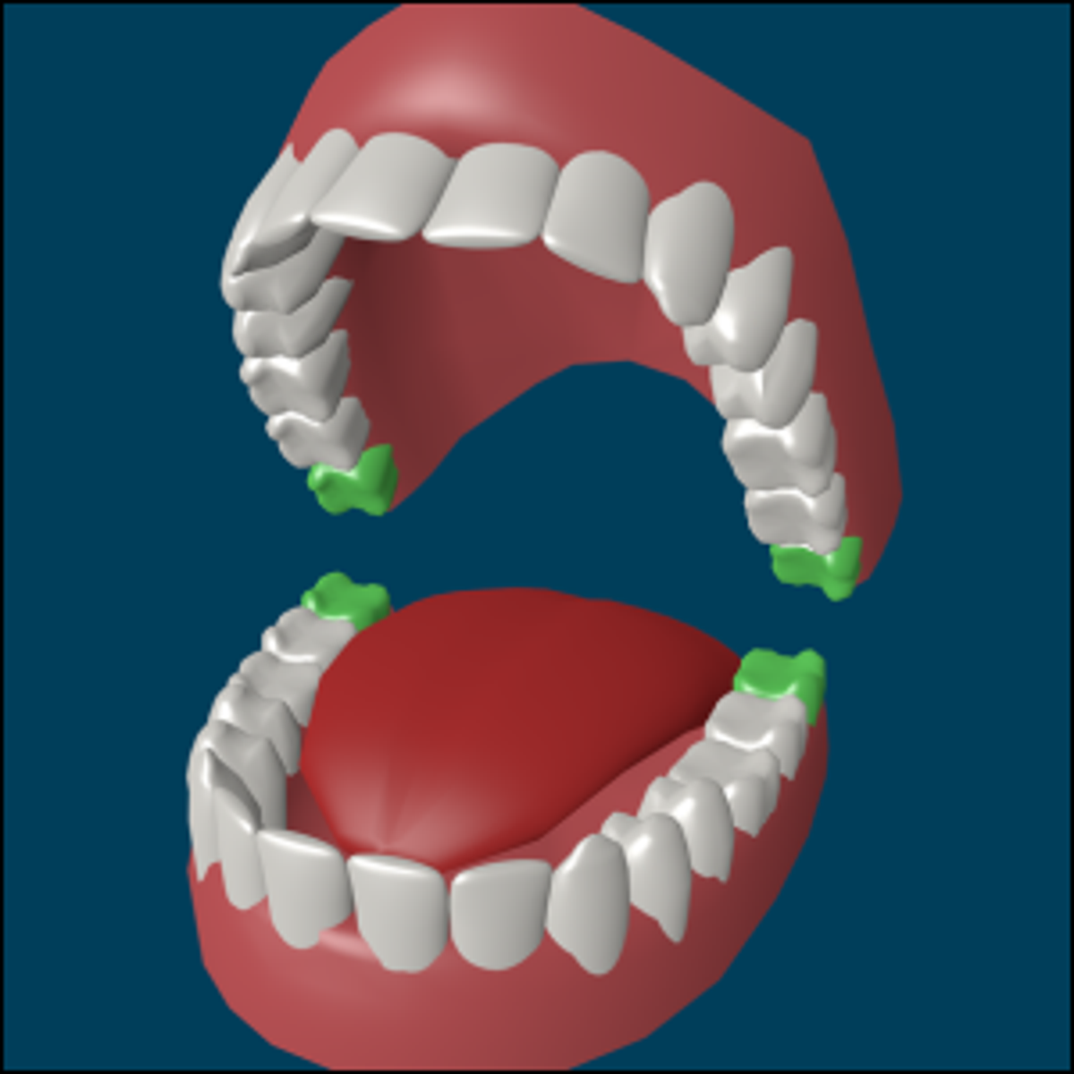 A model of human teeth with the wisdom teeth marked in green.