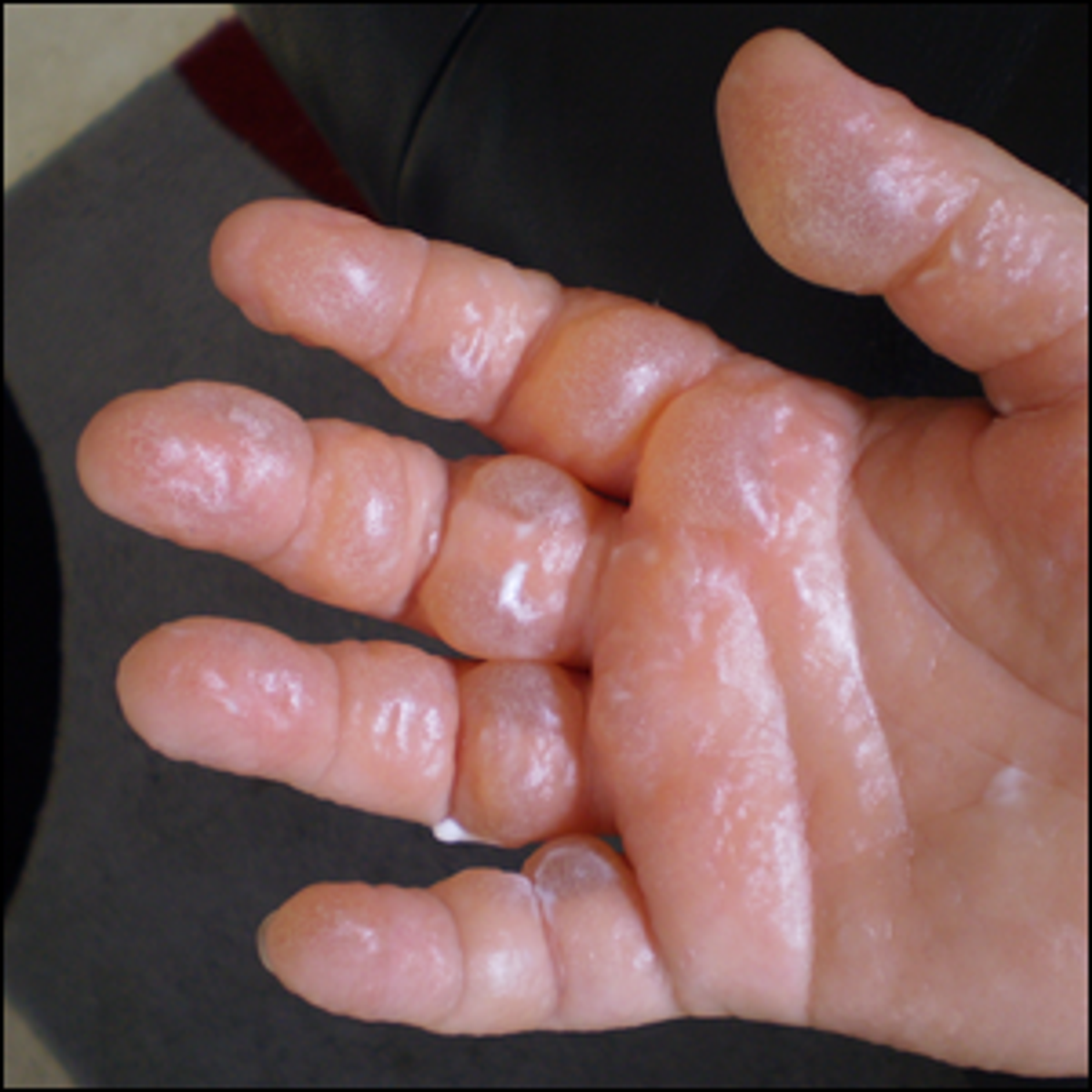 Photo of a severe case of Phytophotodermatitis.