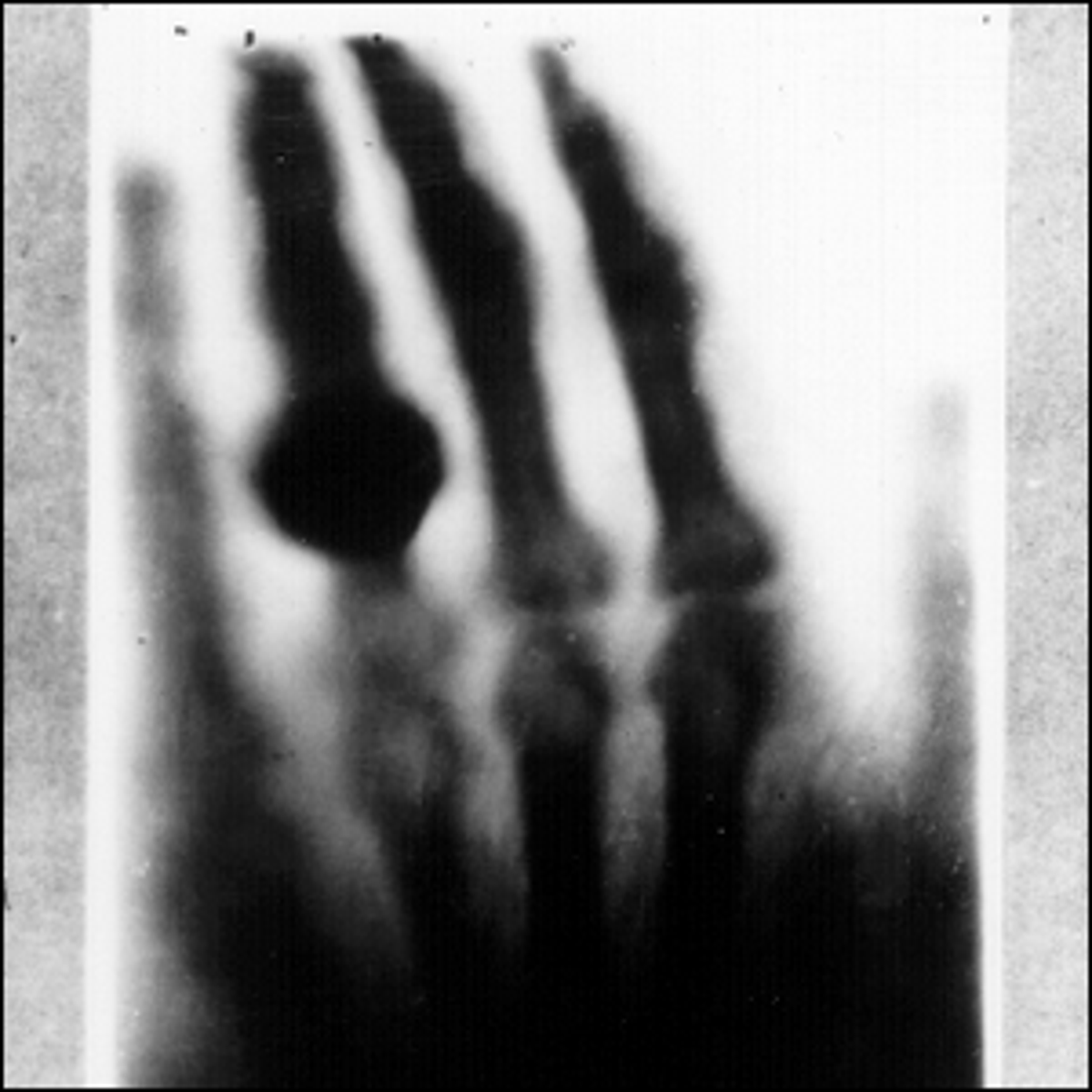 A print of one of the first X-rays by Wilhelm Röntgen of the left hand of his wife Anna Bertha Ludwig.