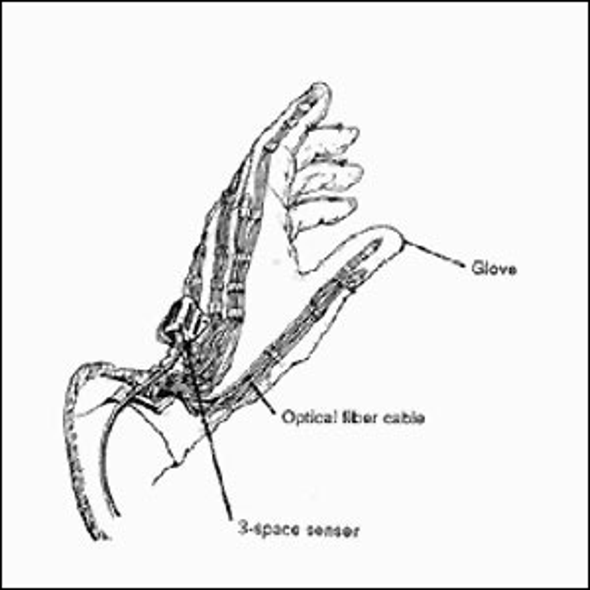 A black and white drawing of the Sayre glove.