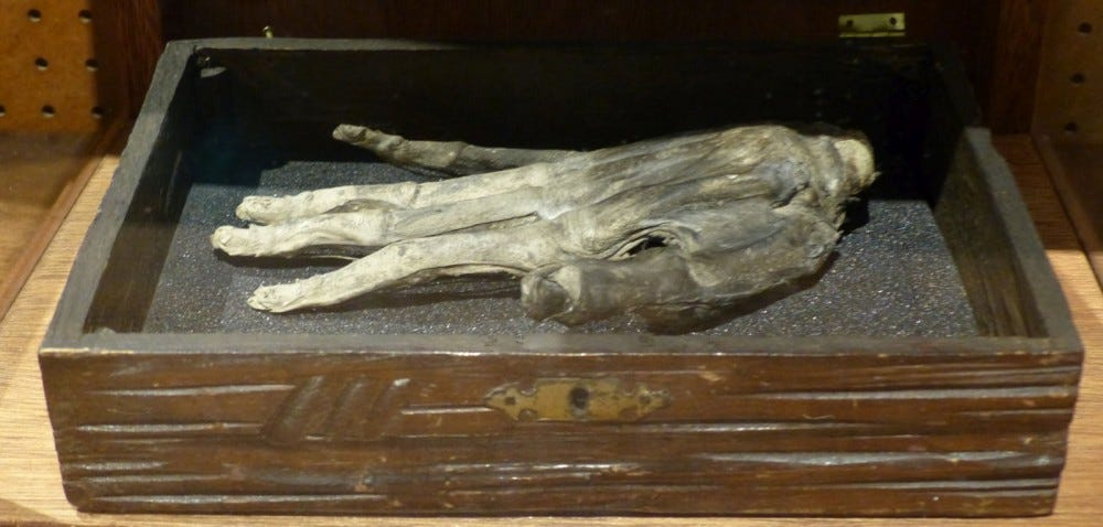 hand of glory in museum display box
